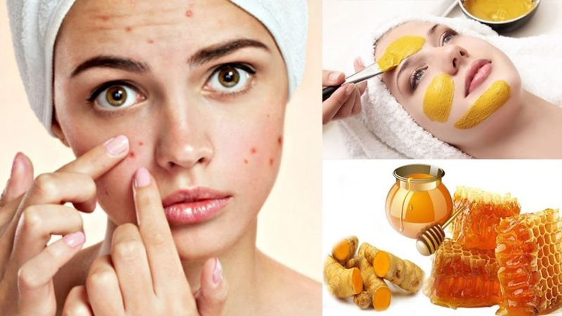 Mặt nạ trị mụn bằng nghệ tươi và mật ong