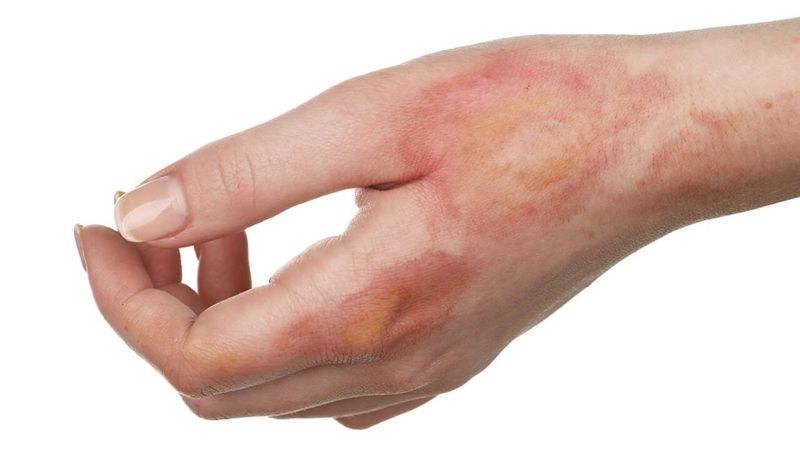 Mật ong được sử dụng để làm dịu vết bỏng